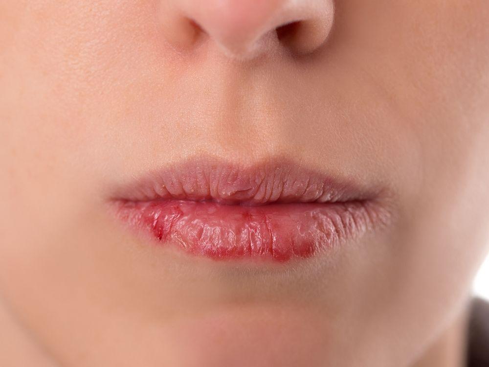 Suchość w ustach: przyczyny i zapobieganie