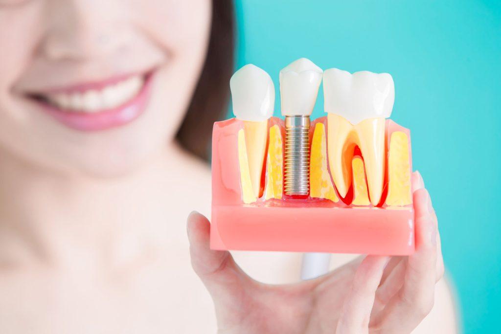 Dentica Bieleccy – pionierem implantologii w Raciborzu