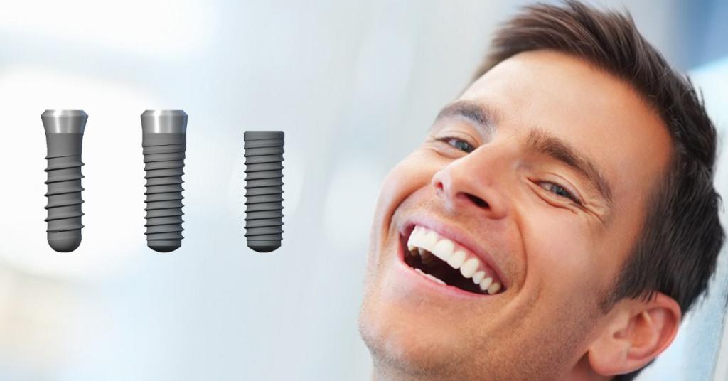 Kiedy zabraknie zęba… 5 powodów, dla których warto wybrać implant
